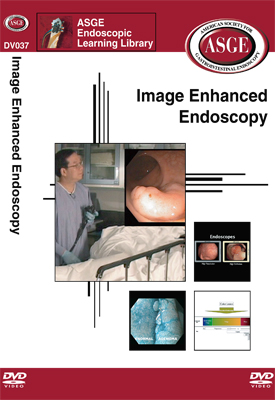 Image Enhanced Endoscopy